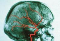 angiographie kopf risiken